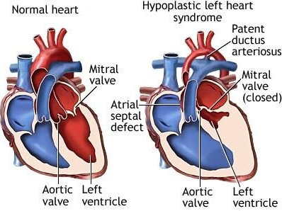 Childrens organ transplant association cota for team daniel s from the left side cannot provide the support needed for life these patients can undergo a three staged surgery or open heart transplant at birth ccuart Choice Image